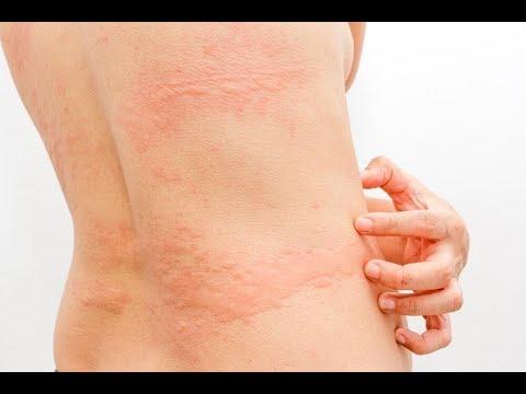 L'orticaria cronica  si presenta con pomfi, prurito e  gonfiore di alcune parti del corpo per un periodo superiore alle sei  settimane e scompare per poi ripresentarsi improvvisamente e  imprevedibilmente.