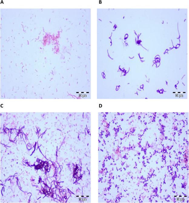 Lactobacillus iners responsabile, insieme ad altri ceppi, di parto pre-termine.