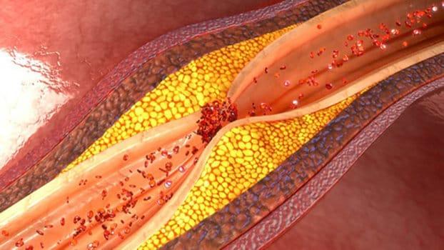 L'aterosclerosi è un accumulo di materiale lipidico imbrigliato in cellule muscolari liscie.