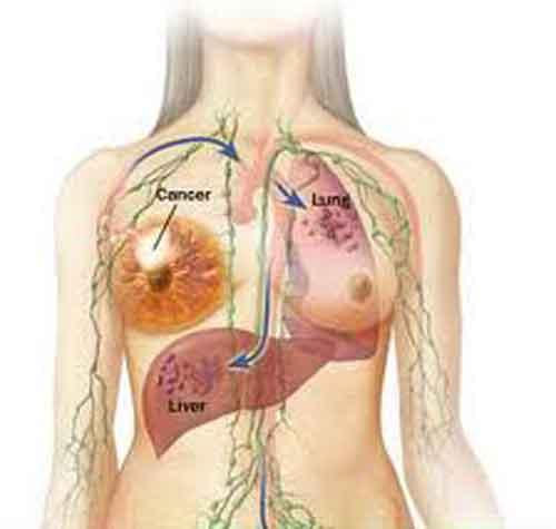 Diffusione del tumore dal tessuto mammario ai polmoni