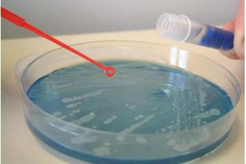 archivi microbici collezionare i microrganismi