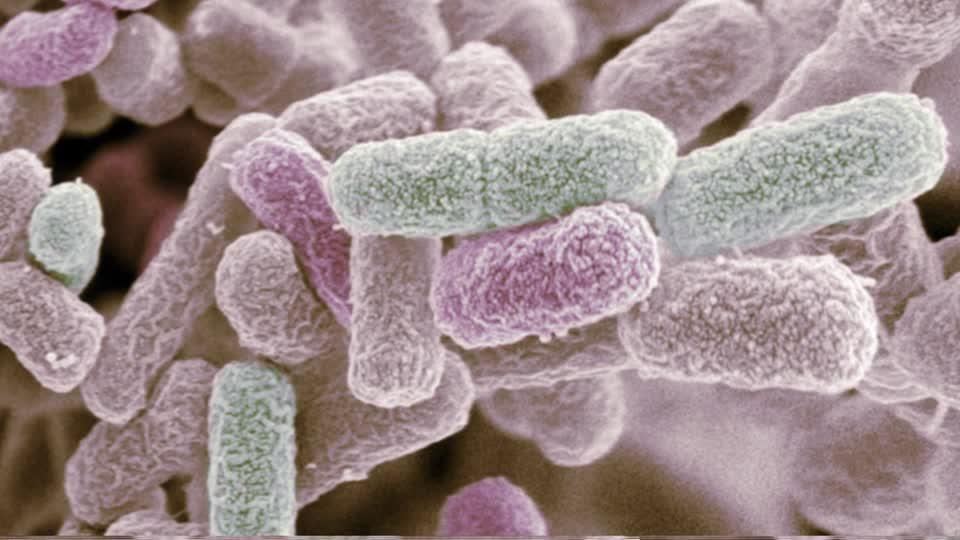 Escherichia coli al microscopico elettronico a scansione