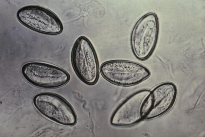 enterobius vermicularis helmintus