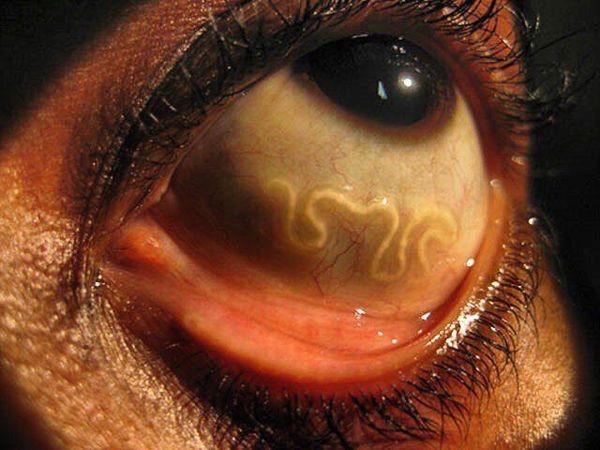 Loa loa nell'occhio