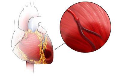 Occlusione di una arteria coronaria nell'infarto miocardico acuto