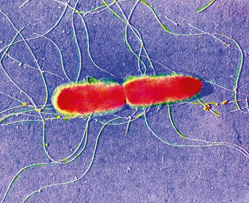 Salmonella typhi, sierovante della Salmonella enterica. Dai genomi rilevati nei resti archeologici si pensa che la Salmonella ritrovata possa essere un progenitore della sierovariante Typhi di tipo C.