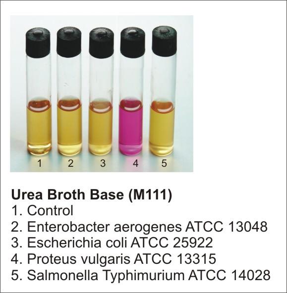 test dell'ureasi condotto su ceppi diversi tramite urea broth base