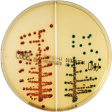 Figura 1 - Immagine della crescita in 24 ore di E.coli KPC (metá CARB, in rosso) e  K.pneumoniae OXA-48 (metá OXA, in verde)