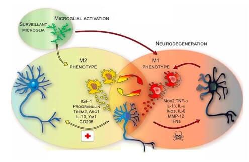 Attivazione della microglia. Il fenotipo M1 sembra contribuire all'instaurarsi di un ambiente tossico che sfocia poi in neurodegenerazione. Il fenotipo M2, al contrario, promuove il recupero dell'omeostasi.