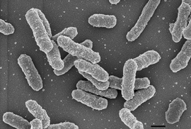 Immagine di Y. pestis al microscopio elettronico a scansione.
