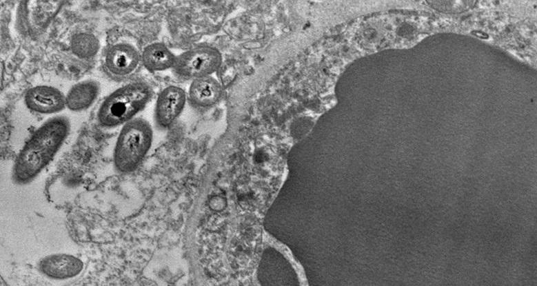 Batteri in campioni cerebrali
