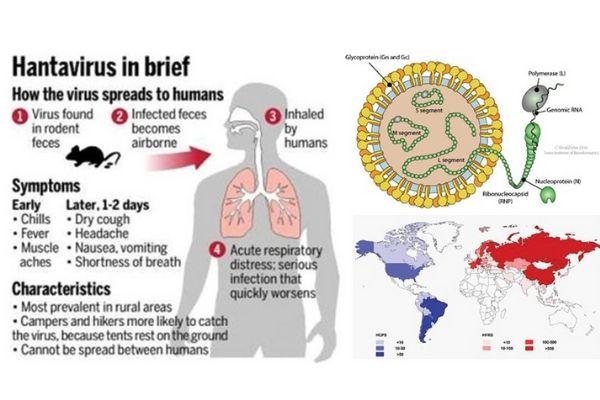 Hantavirus in breve: diffusione, sintomi e caratteristiche