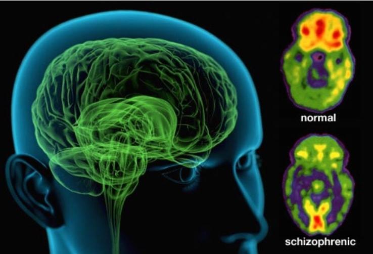 Differenze cerebrali tra pazienti normali e schizofrenici