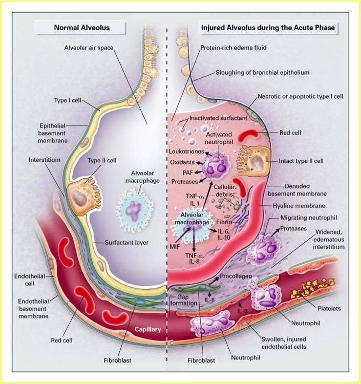 Risposta infiammatoria dell'organismo all'infezione virale da SARS-CoV-2