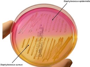 Figura 5- crescita di S.epidermidis su terreno MSA