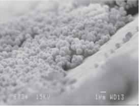 immagine ottenuta con microscopio elettronico, che mostra la crescita del biofilm