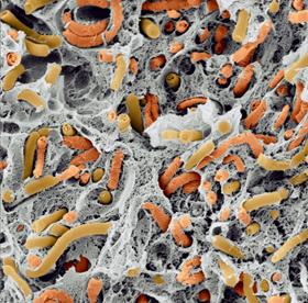 Figura 2- visualizzazione della popolazione microbica presente nei granuli mediante microscopia SEM