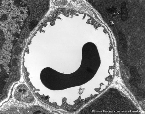 l'immagine mostra la sezione trasversale di un capillare catturata facendo uso di un TEM