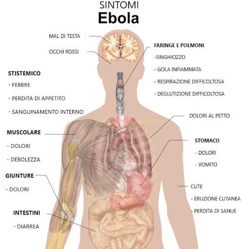 i principali sintomi di Ebola virus
