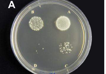 Figura 2 -  Aspetto colonie L. interrogans  a differente concentrazione di CFU/ml