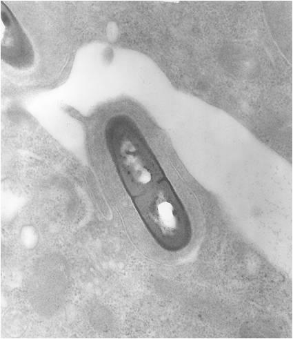 Listeria monocytogenes al microscopio elettronico a trasmissione