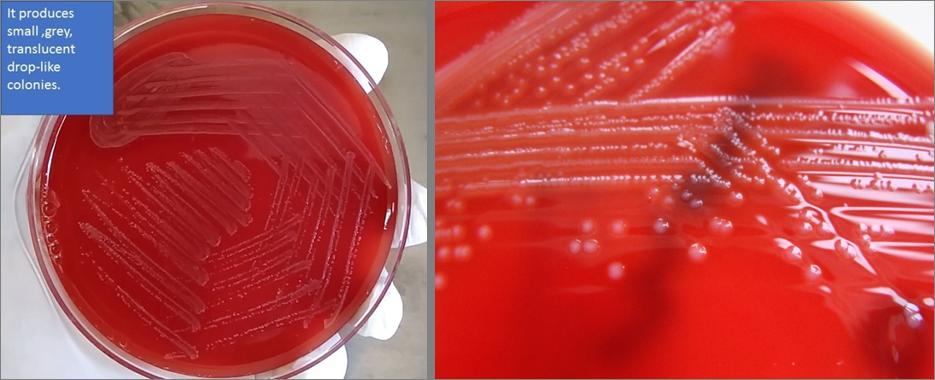 Colonie di L. monocytogenes su agar sangue