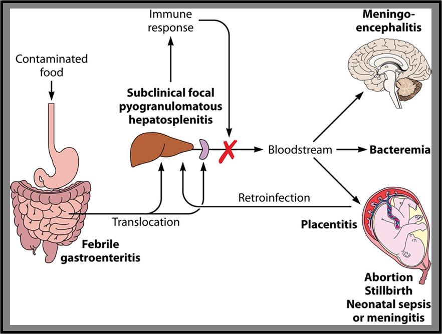 Schema rappresentativo della fisiopatologia della L. monocytogenes