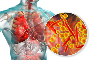 Mycoplasma pneumoniae causa polmoniti atipiche
