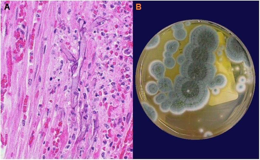 A) Biopsia della mucosa dell'intestino tenue che mostra l'angioinvasione; B) Aspetto del Penicillium risultante dalla coltura del campione ematico