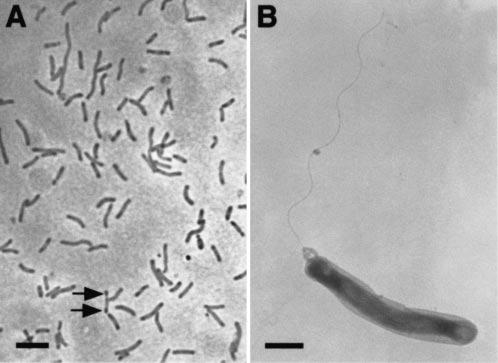 Batteri simbionti dei teredinidi al microscopio
