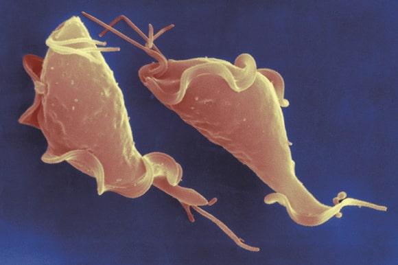Immagine di Trichomonas vaginalis al microscopio elettronico a scansione