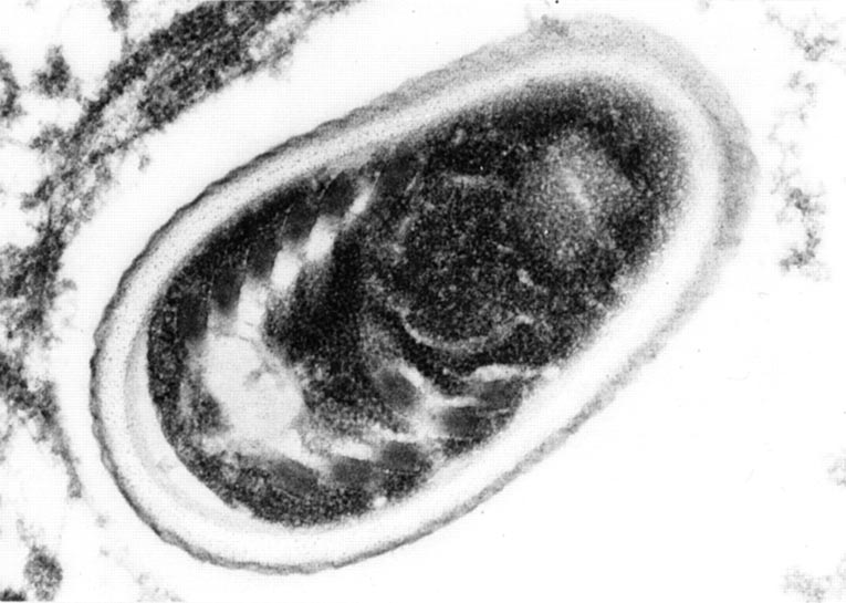 Aspetto microscopico Encephalitozoon cuniculi
