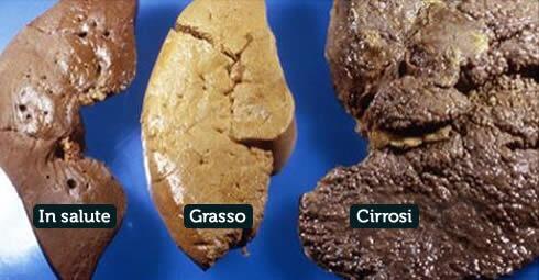 Differenza tra fegato normale, grasso e con cirrosi