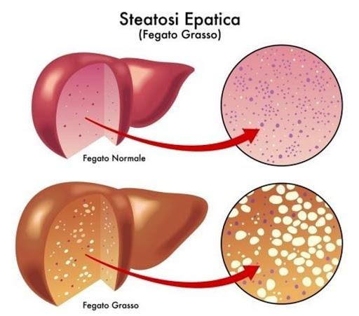 Differenza tra fegato normale e fegato grasso