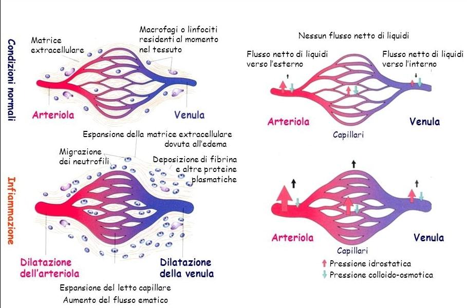 modificazioni vascolari durante l'infiammazione acuta