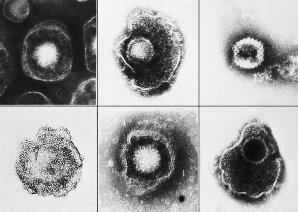 Vari virus della famiglia Herpesviridae osservati al microscopio elettronico