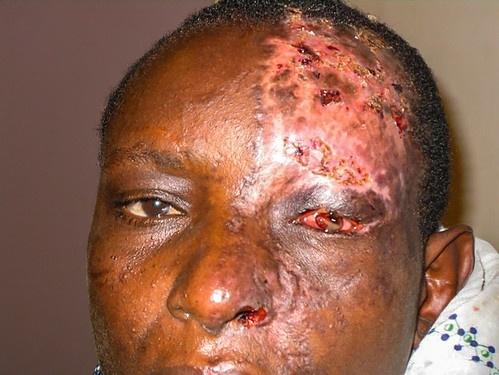 Manifestazione dell'herpes zoster oftalmico