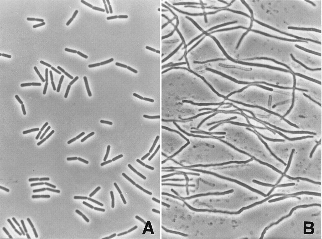 Fusobacterium al microscopio ottico