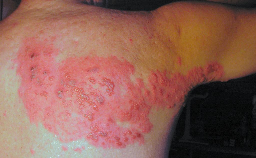 Manifestazione cutanea dell'herpes zoster dietro la schiena