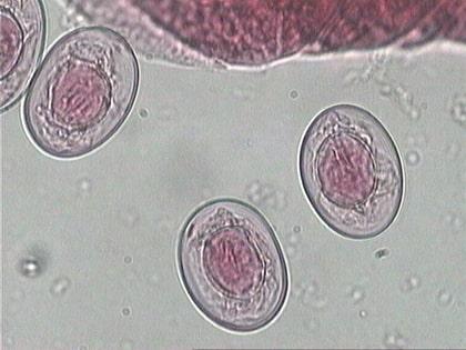 Uova embrionate di H. nana