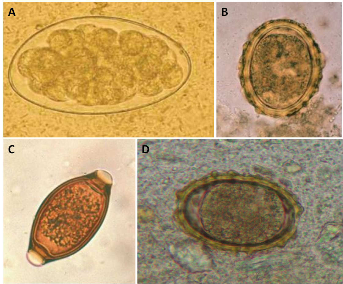 Uovo di T. colubriformis (A) a confronto con uova di Ascaris lumbricoides (B), Trichuris trichuria (C) e Ancylostoma duodenale (D) [Keyhan Ashraf et a., 2014 / https://www.researchgate.net/figure/Ancylostoma-duodenale-egg-with-larva_fig6_7226387 / https://www.researchgate.net/figure/Ascaris-lumbricoides-Trichuris-trichiura-hookworm-eggs-and-Strongyloidiasis_fig2_332164167]