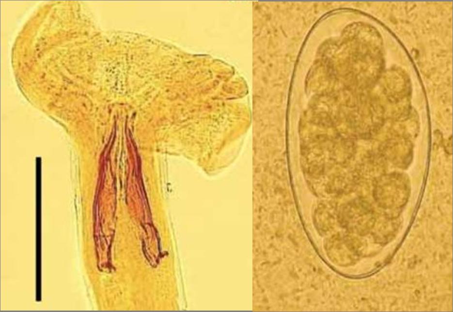 Trichostrongylus colubriformis