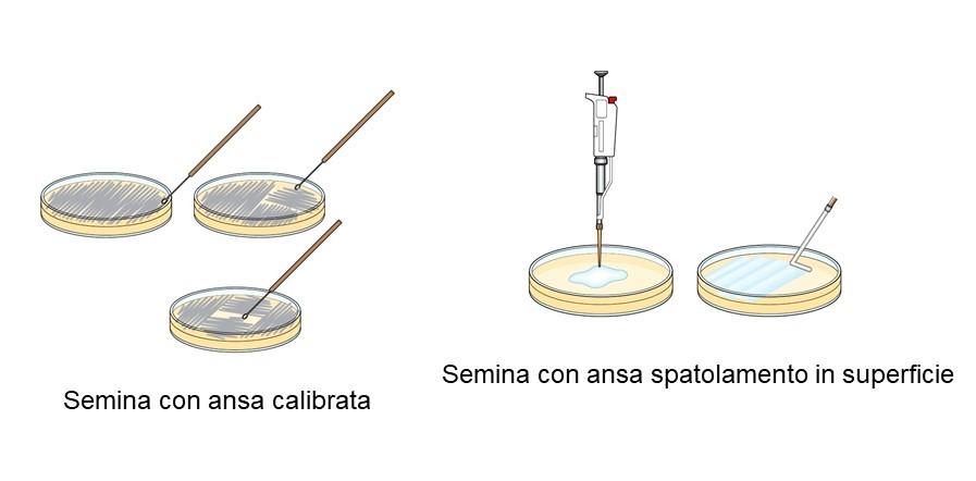 tecniche di semina microbiologica