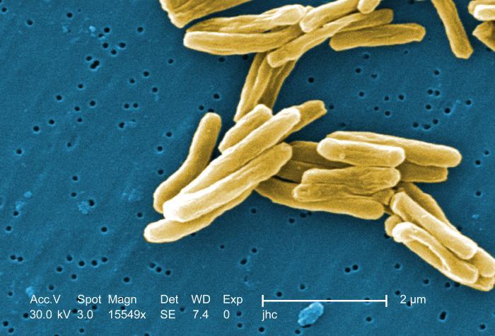 immagine da microscopia elettronica del bacillo di Koch
