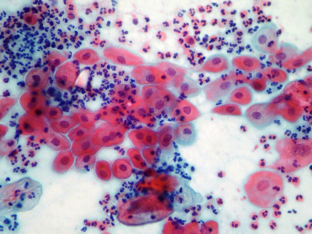 Vetrino con colorazione di Papanicolaou: da notare in blu/viola i nuclei delle cellule.