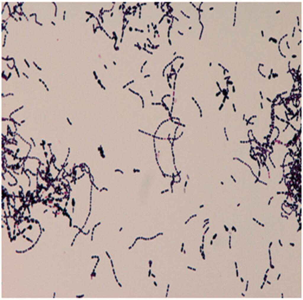 Streptococcus bovis