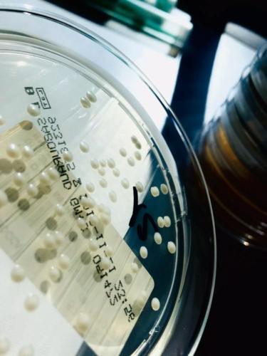 Candida albicans su Sabouraud dextrose agar