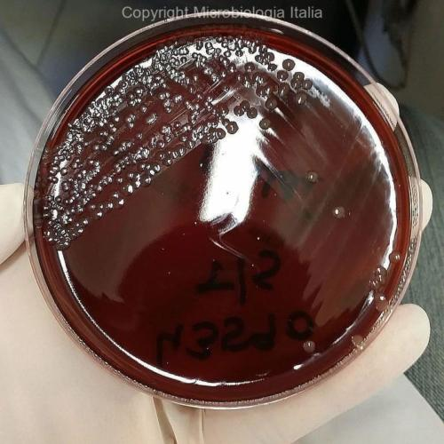 Neisseria meningitidis su New York City Medium agar