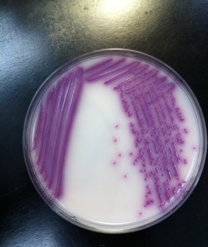 Salmonella su Chromogenic agar Base
