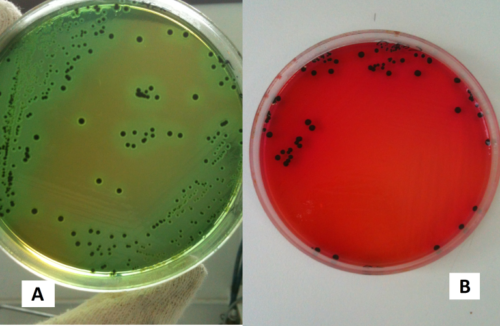 Salmonella spp. in terreno hektoen enteric agar (A) e xld medium (B)